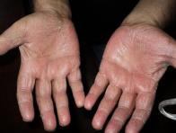 Grybelis tarp ranku pirstu